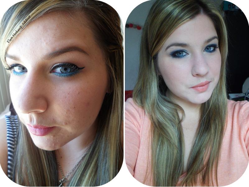 Mon bilan contre l'acné avec Tetralysal : le bilan – Elsa